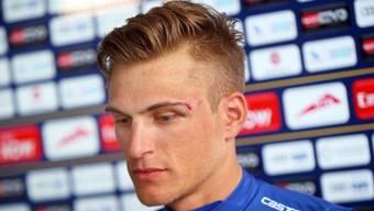 Mit sichtbarem Cut neben dem linken Auge: Marcel Kittel.