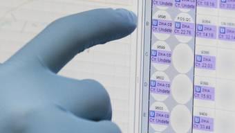 Monitor mit Resultaten eines Bluttests für den Zika-Virus. (Symbolbild)