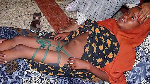 Milliardenkosten für Genitalverstümmelungen