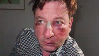 So übel sah Komiker Beat Schlatter nach der Attacke aus.