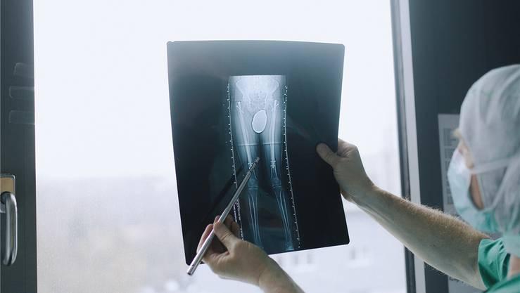 Das Röntgenbild macht die Nägel in den Oberschenkelknochen sichtbar.