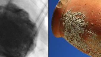 """Wie eine japanische Tintenfischfalle aus Ton sieht das """"gebrochene Herz"""" aus: Enger Hals, bauchiger Körper. Das ist denn auch die Bedeutung des aus dem Japanischen stammenden Namens der Krankheit: """"Takotsubo""""Syndrom."""