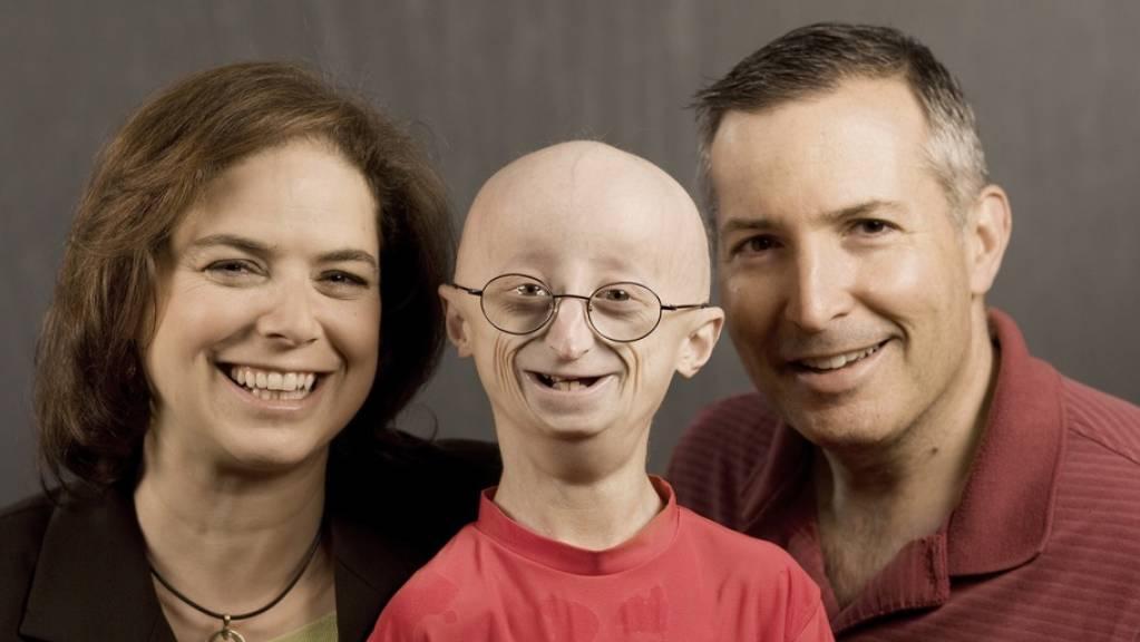 Der mit Progeria geborene Sam Berns zusammen mit seinen Eltern Leslie Gordon (l) und Scott Berns (r). Sam starb 2014 mit 17 Jahren. Seine Mutter gründete eine Progeria-Stiftung und ist Mitautorin einer aktuellen Studie, in der ein Heilverfahren erfolgreich an Mäusen getestet wurde. (Archivbild).