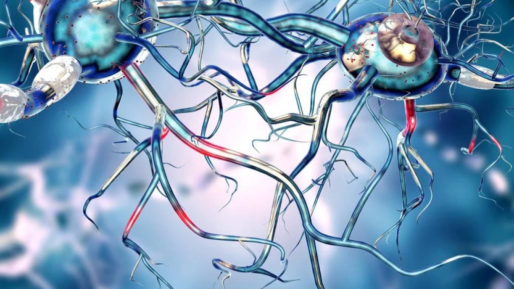 Mutiertes Huntingtin, erkennbar am langen Glutamin-Schwanz, der zur Zusammenlagerung des Huntingtins in den Gehirnzellen führt und diese zerstört. (EPFL)