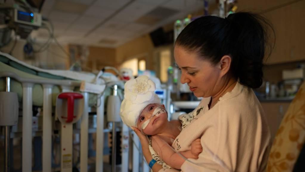 In diesem vom UC Davis Children's Hospital zur Verfügung gestelltem Handout zeigt Mutter Liliya ihr Kind Micaela nach der Operation.
