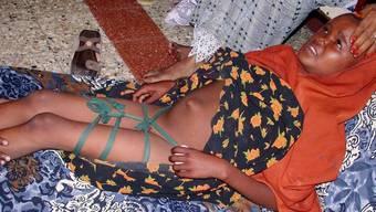 Ein somalisches Mädchen nach der Beschneidung (Symbolbild)