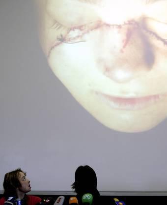 Isabelle Dinoires erste Medienkonferenz nach ihrer Operation. Die Fotografie zeigt ihr Gesicht nach der Operation.