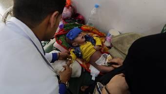 Im Jemen ist die humanitäre Situation prekär. Hier behandelt ein Arzt ein ein unterernährtes Kind.