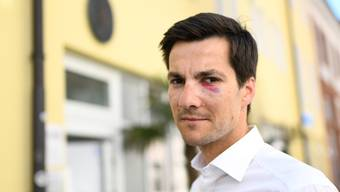 Martin Horn Freiburger Bürgermeister verletzt