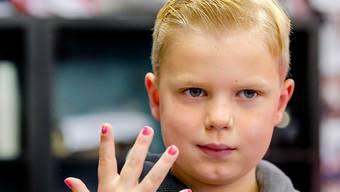 Unheilbar krank: Tijn von Kolsteren sammelt mit seiner Nagellack-Aktion Millionen für andere kranke Kinder.