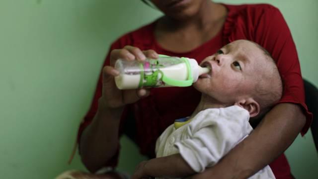 Mutter mit unterernährtem Sohn in Guatemala (Archivbild)