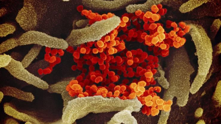Coronavirus (orange) unter dem Elektronenmikroskop. (Bild: Keystone)