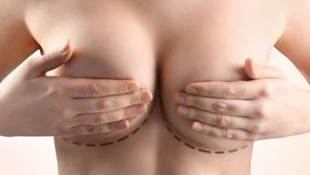 Grosse Nachfrage: Immer mehr Frauen hegen den Wunsch nach einer Brustvergrösserung.