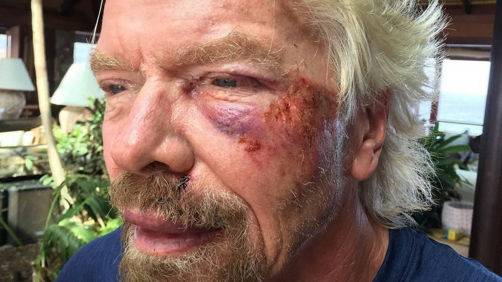 Der britische Milliardär und Unternehmer Sir Richard Branson ist vom Fahrrad gestürzt und hat sich verletzt (Archiv)