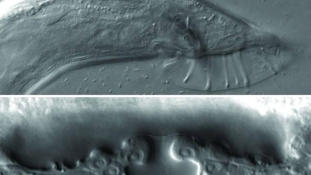 Die primären Geschlechtsorgane des Fadenwurms Caenorhabditis elegans, oben das männliche, unten das weibliche. Die Entschlüsselung des Geschlechtsreifungsprozesses von C. elegans soll laut Basler Forschern auch Rückschlüsse auf die menschliche Pubertät erlauben. (zVg)